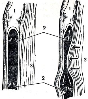 Рис. 29. Схема действия венозных клапанов: слева - мышца расслаблена, справа - сокращена; 1 - вена, нижняя часть которой вскрыта; 2 - венозные клапаны; 3 - мышца. Черные стрелки - давление сократившейся мышцы на вену; белые стрелки - движение крови по вене